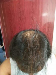 Regrow Your Hair Naturally – No Random Diets, Topicals